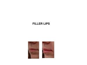 Lip Fillers Melbourne