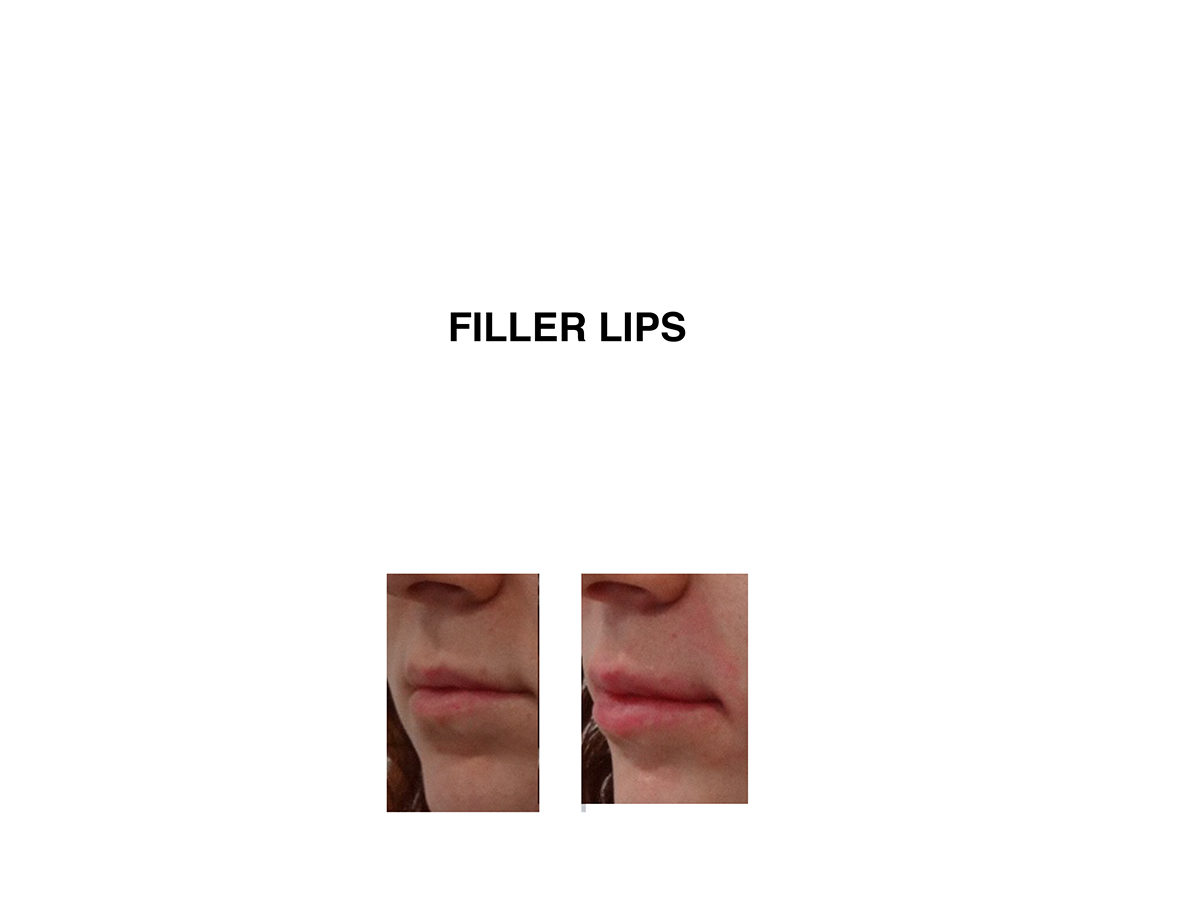 Lip Fillers Melbourne