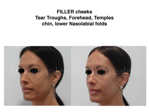 Fillers - Cheeks, Forehead, Temples, Chin