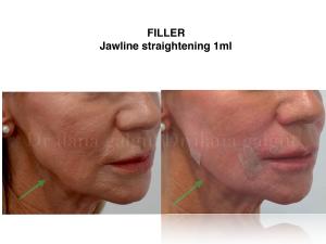 Filler - Jawline straightening