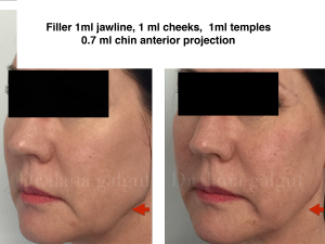 Fillers - Jawline, cheeks, temples, chin
