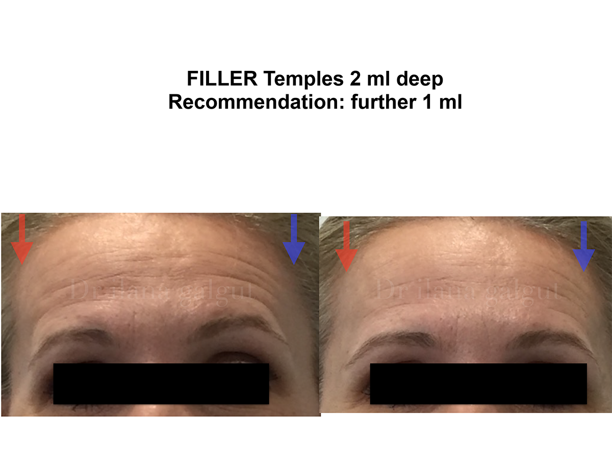 Temple fillers