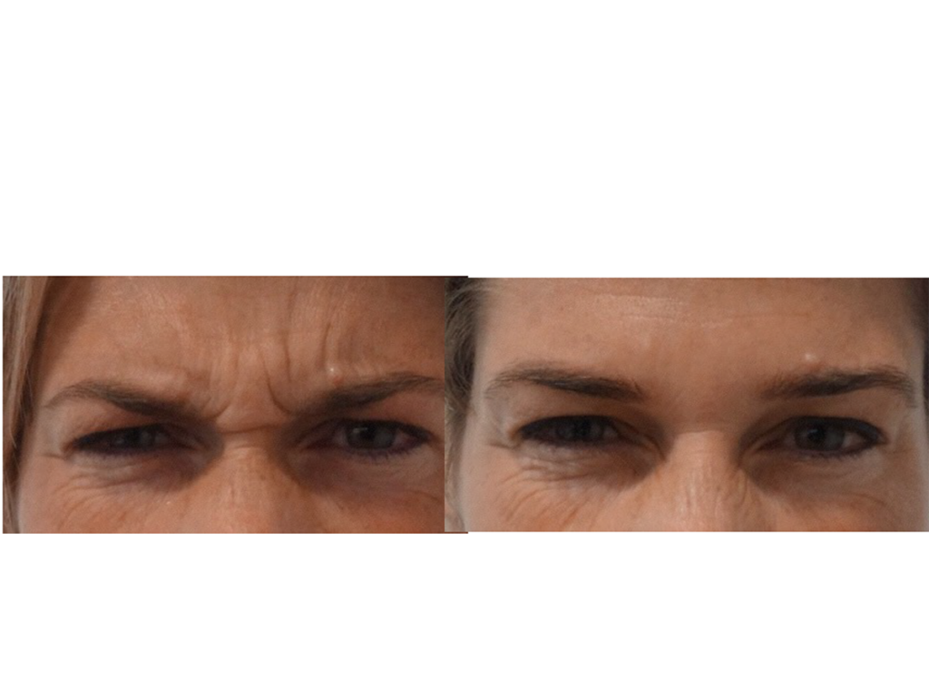 Antiwrinkle Before and After